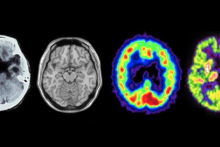 知っておきたい認知症の画像診断
